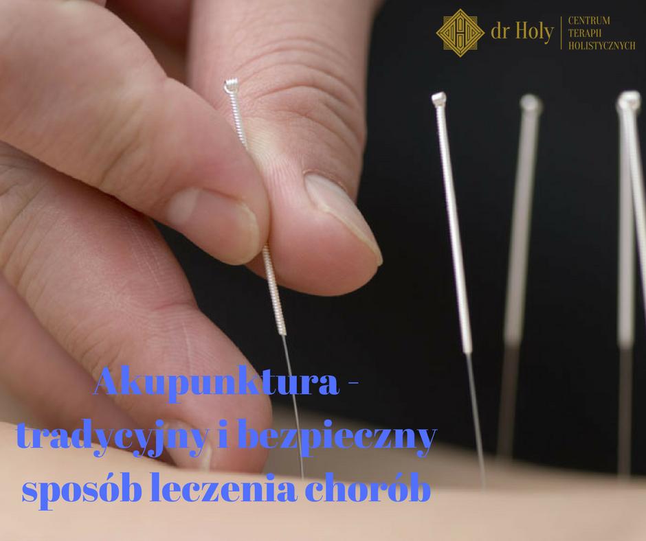 Akupunktura Opole
