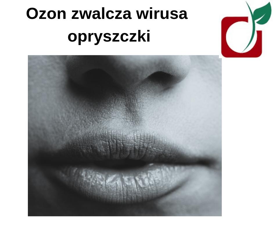 Ozonoterapia drHoly Opole